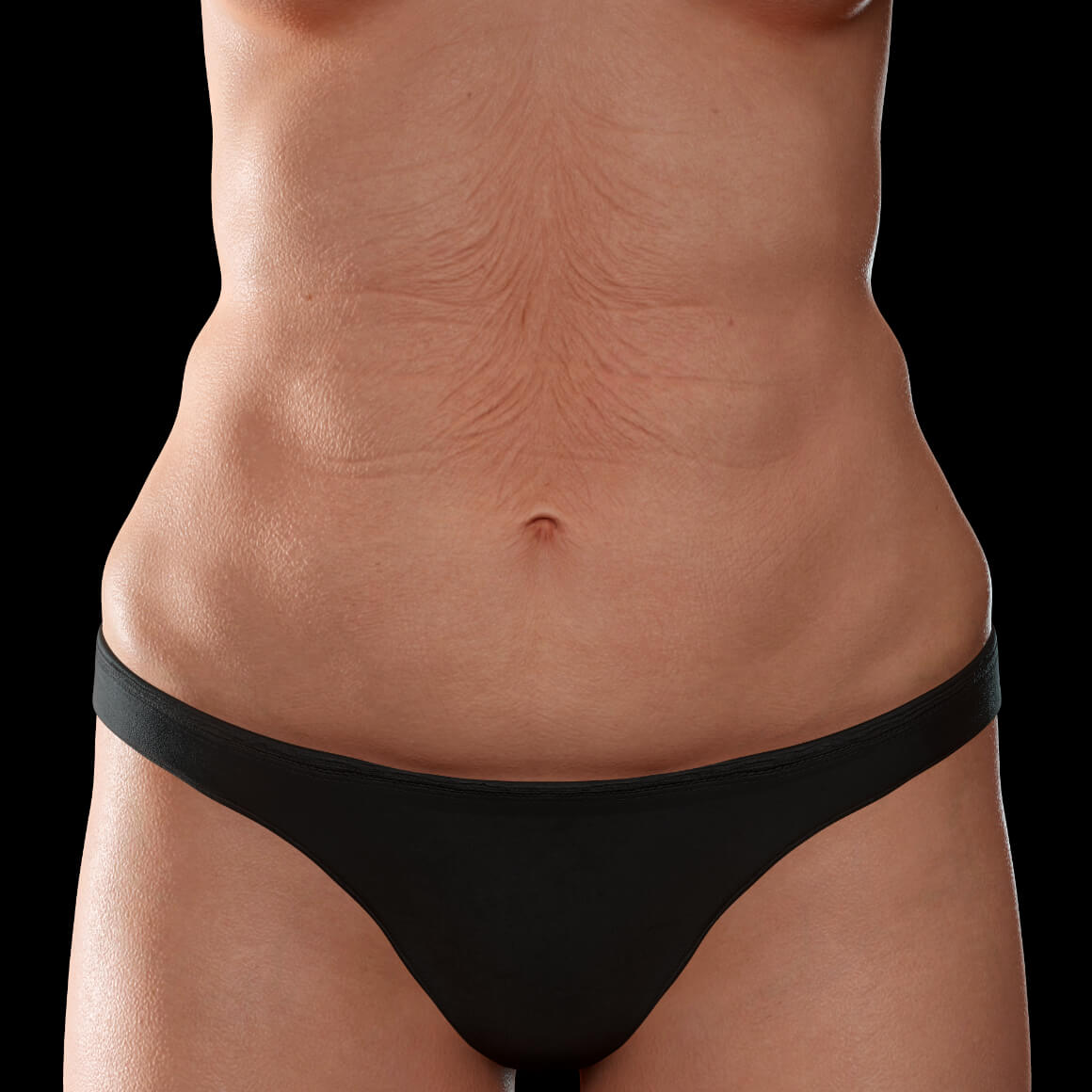 A female patient from Clinique Chloé facing front showing body skin laxity on her abdomen