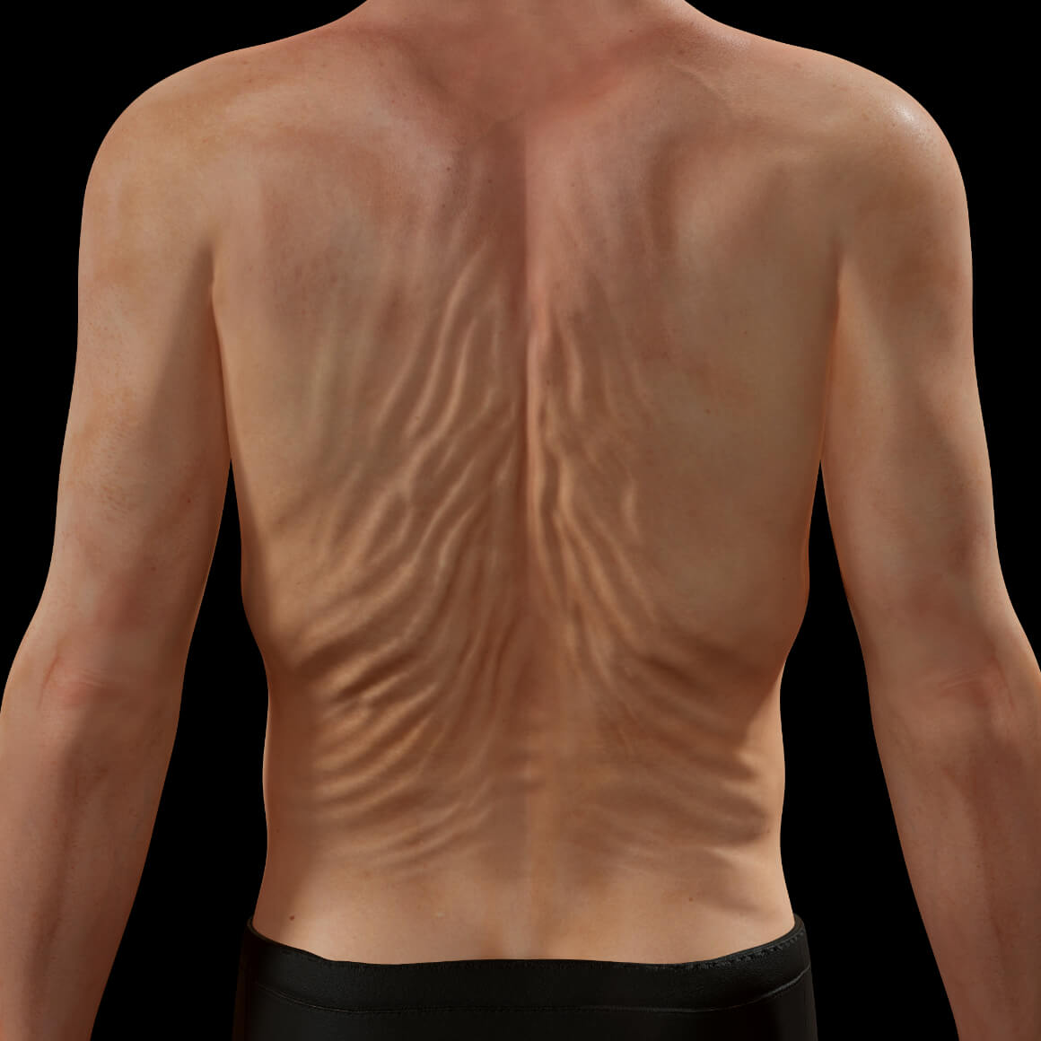 Back of a Clinique Chloé patient showing skin laxity