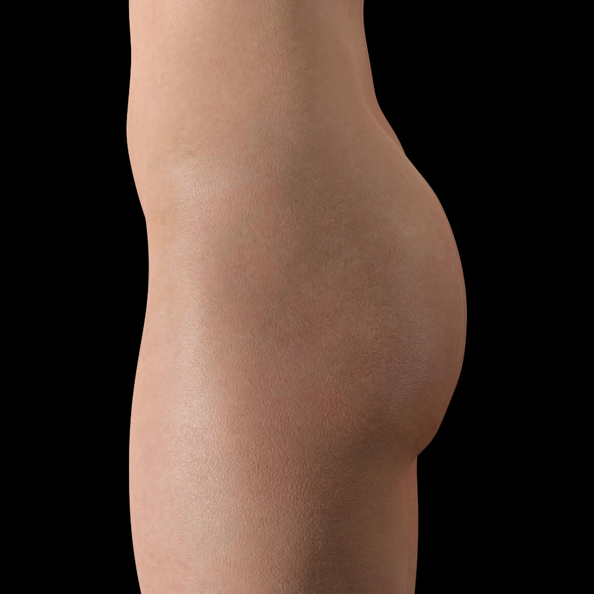 Female patient at Clinique Chloé positioned sideways before a butt lift treatment