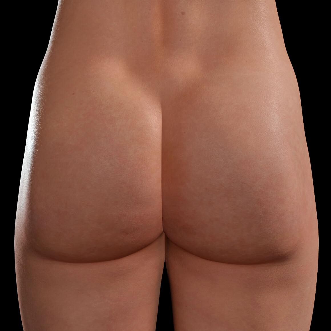 Buttocks of a Clinique Chloé female patient after Sculptra injections for cellulite treatment