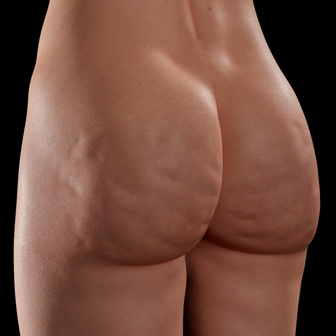 A female patient at Clinique Chloé positioned at an angle showing cellulite in the buttock area