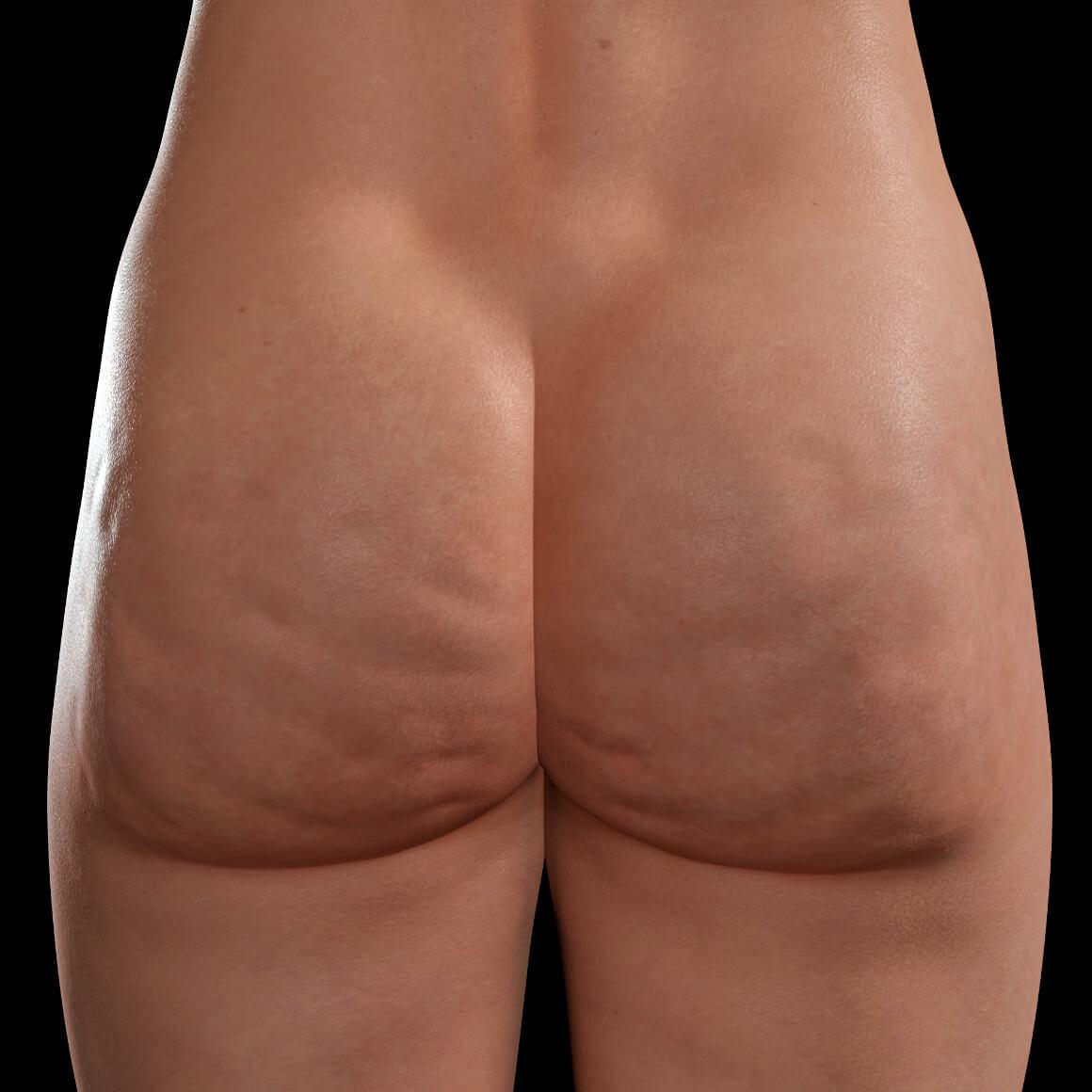 Buttocks of a Clinique Chloé female patient showing cellulite