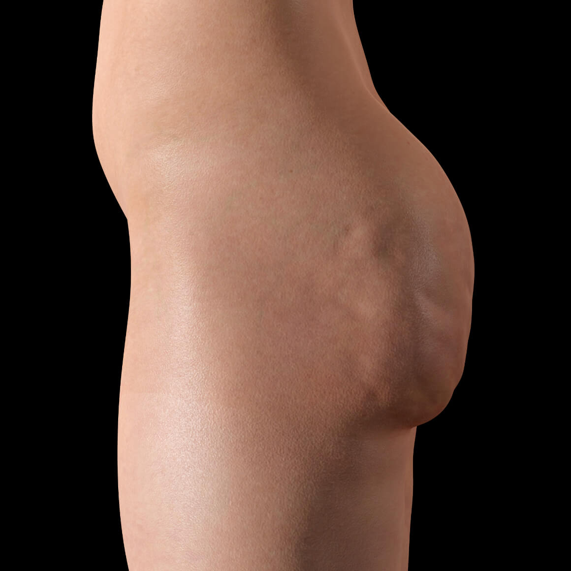 Female patient from Clinique Chloé positioned sideways with cellulite on her butttocks