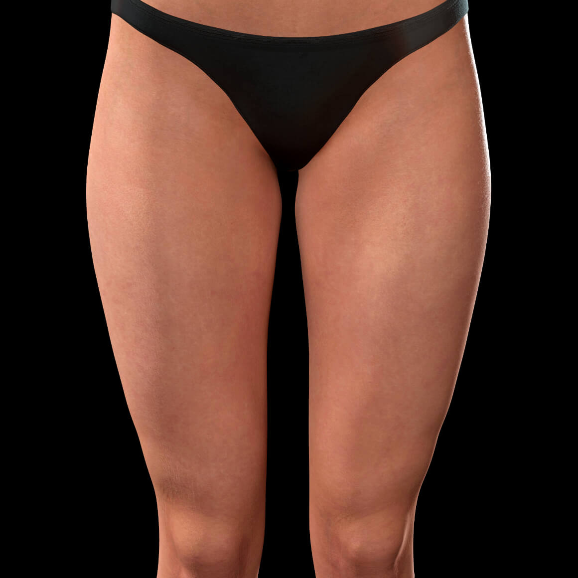 Front thighs of a female patient from Clinique Chloé after TightSculpting laser treatments for cellulite treatment
