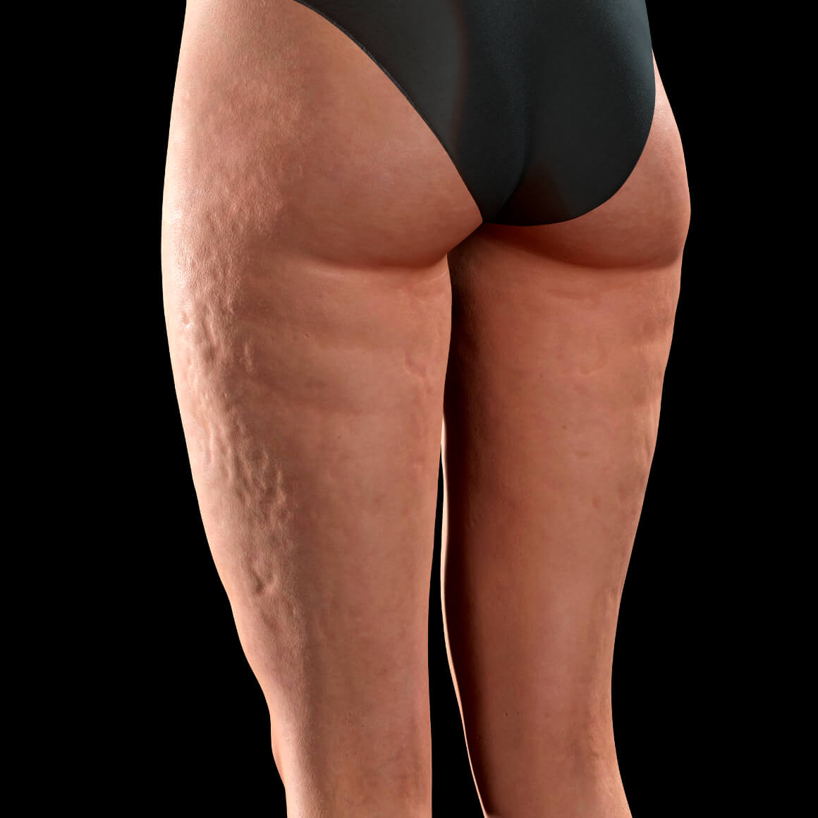 Female patient from Clinique Chloé positioned at an angle showing cellulite on her thighs