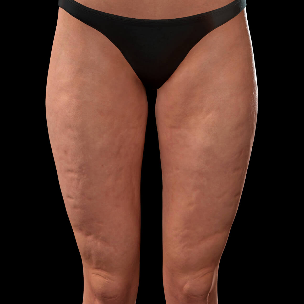 Front thighs of a female patient from Clinique Chloé showing cellulite