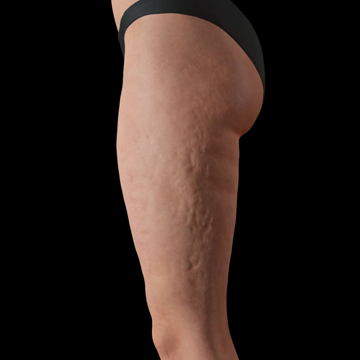 Female patient from Clinique Chloé positioned sideways showing cellulite on her thighs