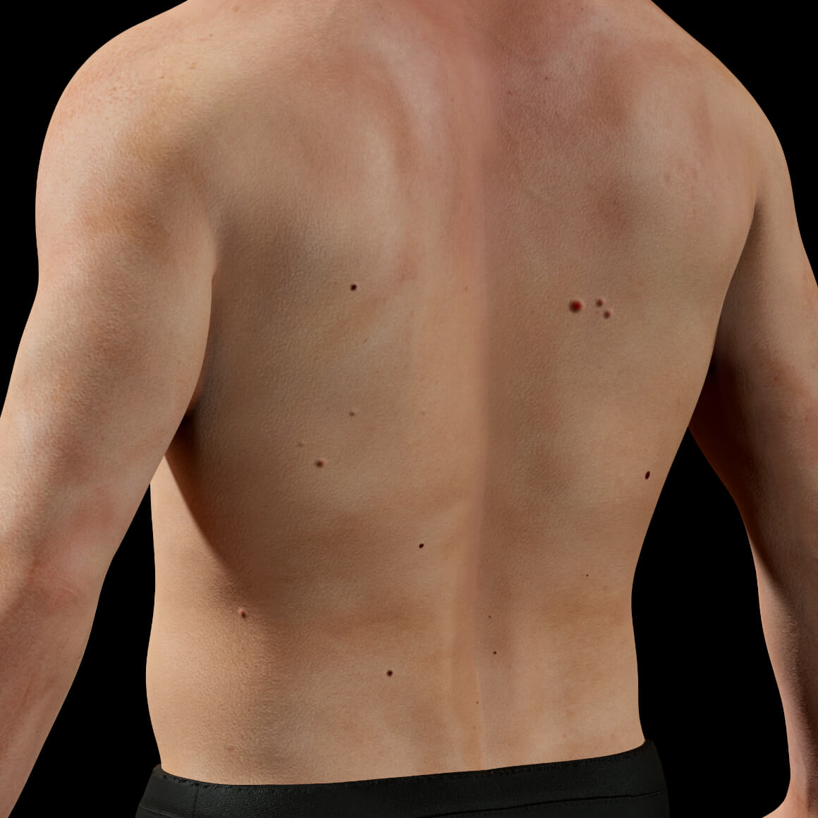 45-degree angle of the back of a male patient at Clinique Chloé showing cherry angiomas