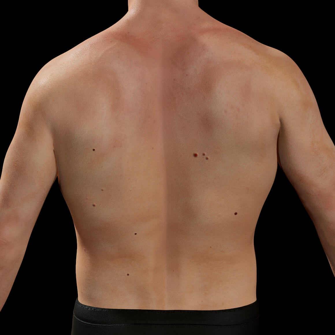 Back of a male patient from Clinique Chloé showing cherry angiomas