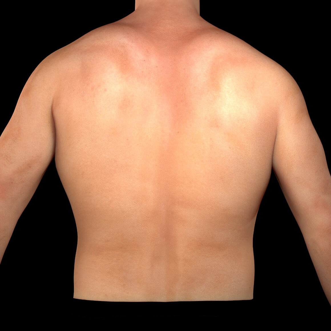 Back of a Clinique Chloé male patient after permanent laser hair removal