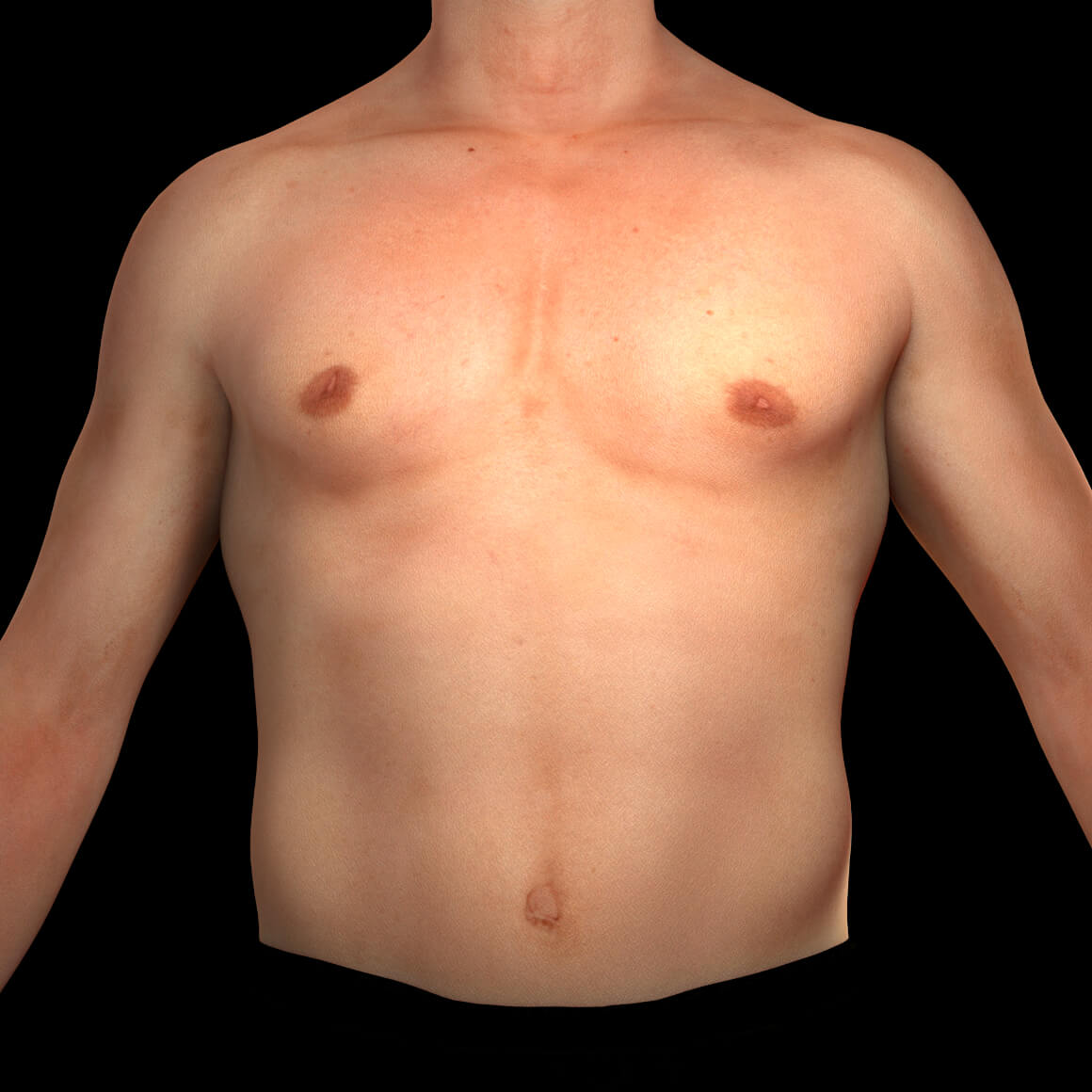 A male patient from Clinique Chloé facing front after permanent laser hair removal on the chest