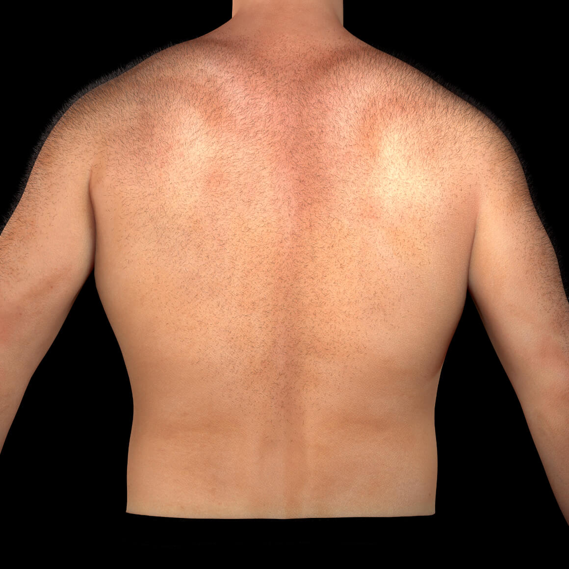 Back of a Clinique Chloé male patient covered with unwanted hair
