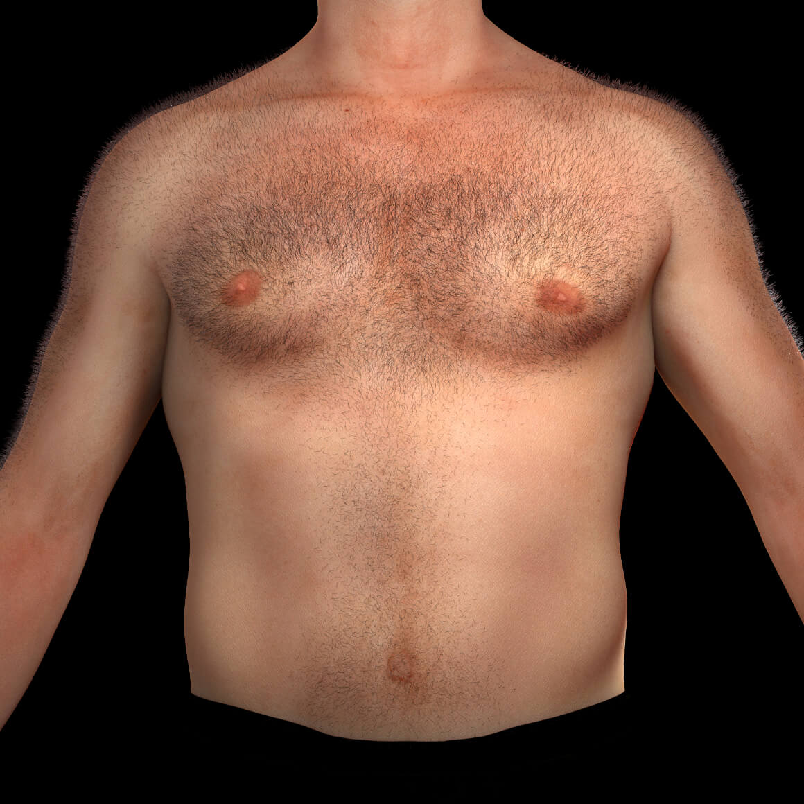 A male patient from Clinique Chloé facing front with unwanted hair on the chest