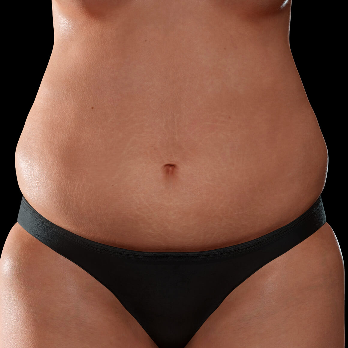 Female patient from Clinique Chloé facing front after fractional laser treatments for stretch marks