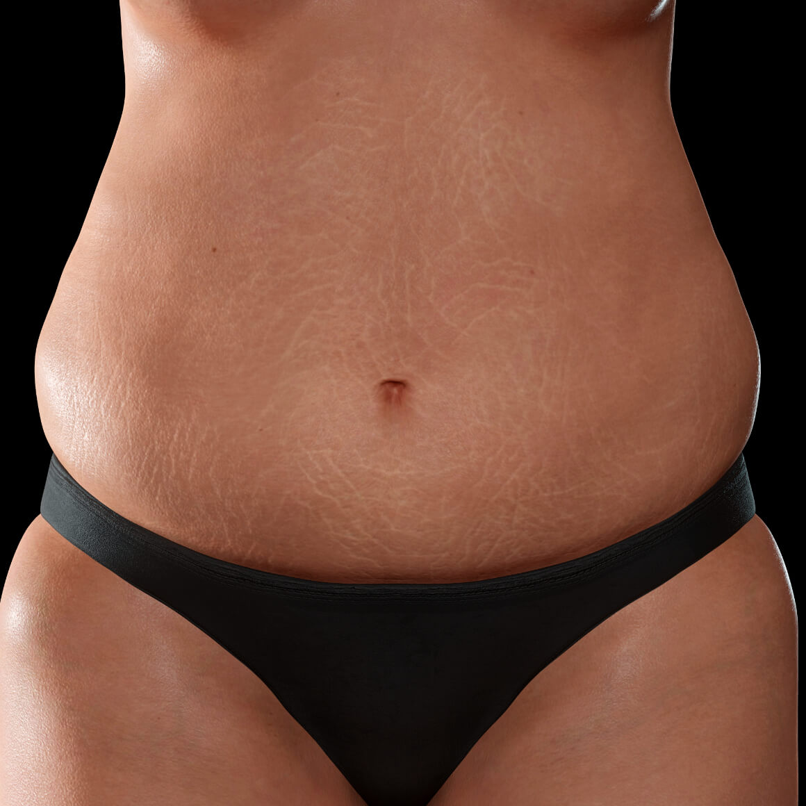 Female patient from Clinique Chloé facing front with stretch marks on her abdomen