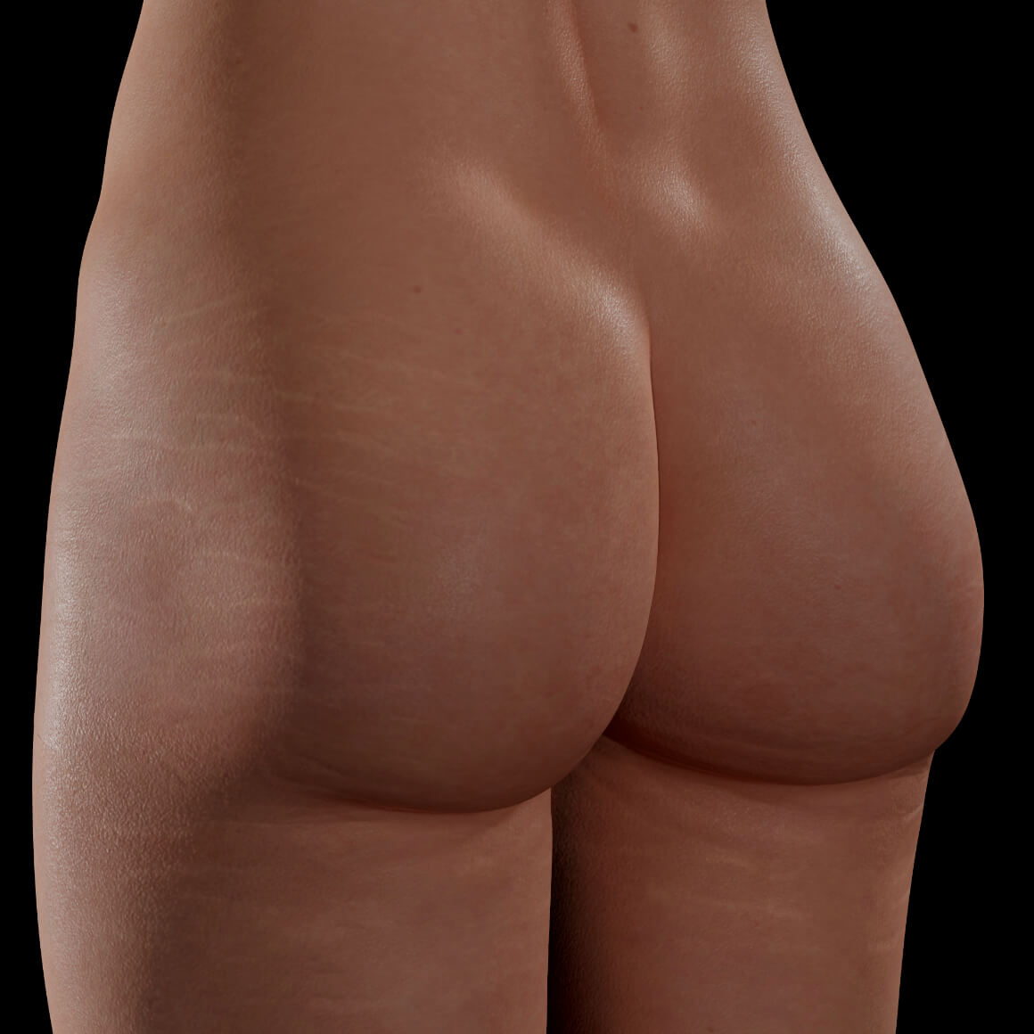 Angled Clinique Chloé female patient after PRP treatments for stretch mark reduction