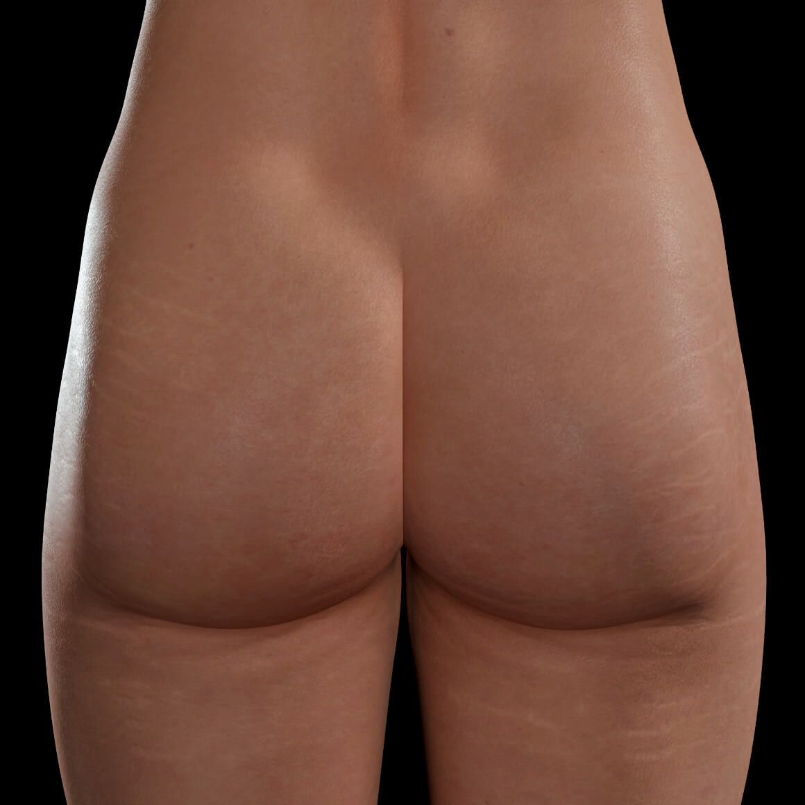 Buttocks and thighs of a Clinique Chloé female patient after stretch mark treatments with PRP