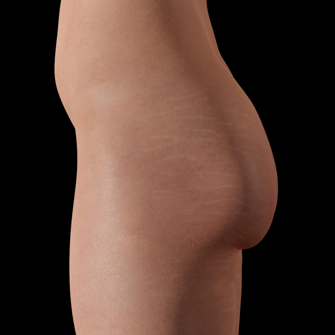 Female patient from Clinique Chloé positioned sideways after PRP treatments for stretch mark reduction
