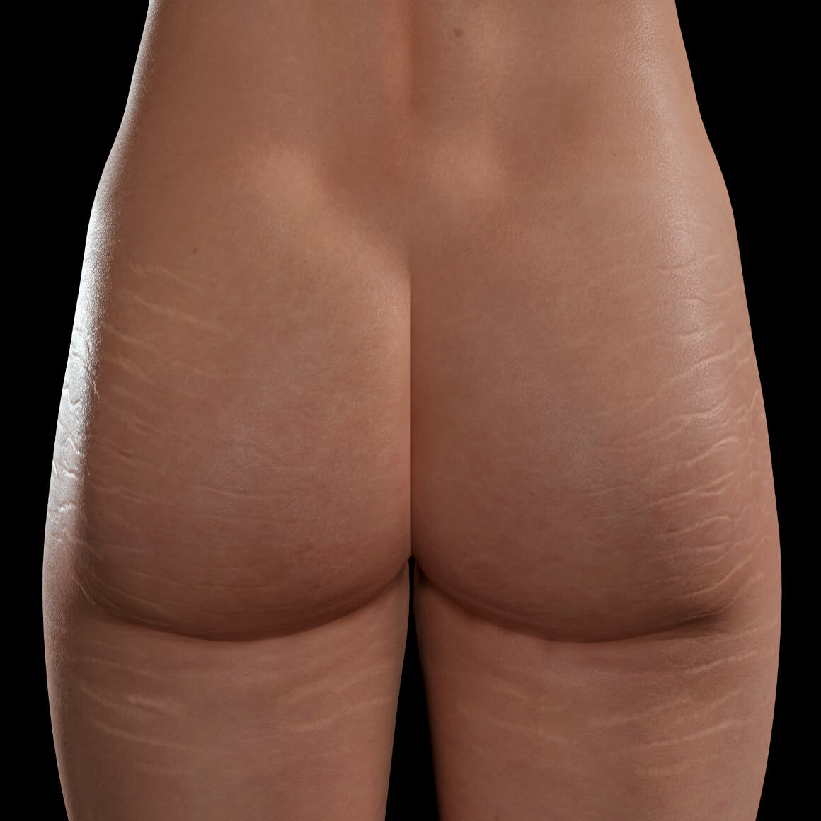 Buttocks and thighs of a Clinique Chloé female patient showing stretch marks