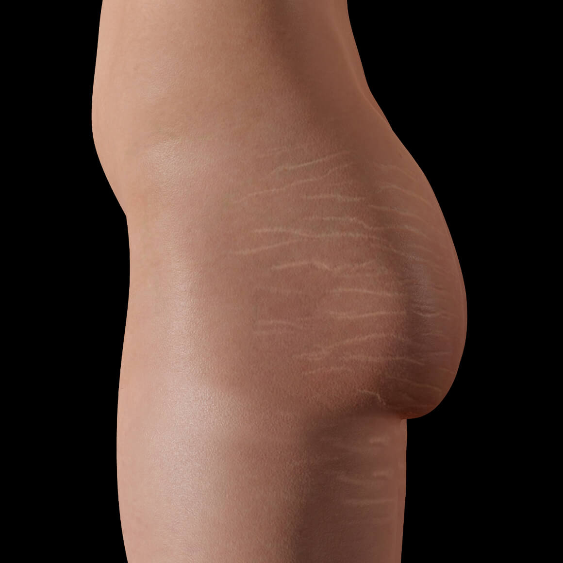 Female patient from Clinique Chloé positioned sideways with stretch marks on her buttocks and thighs