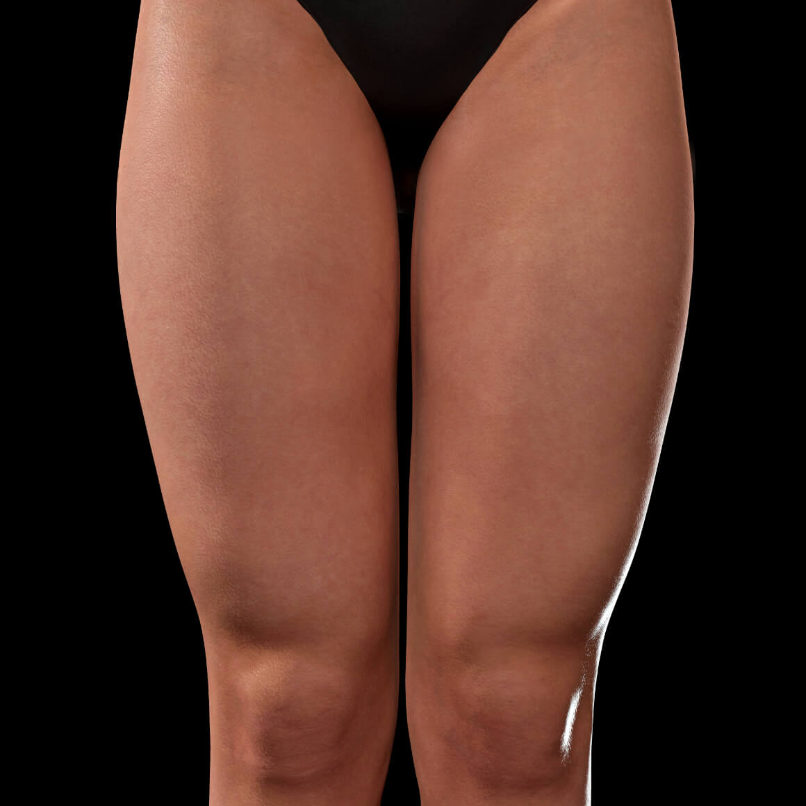 Anterior thighs of a Clinique Chloé female patient after Venus Viva fractional radiofrequency treatments for stretch marks