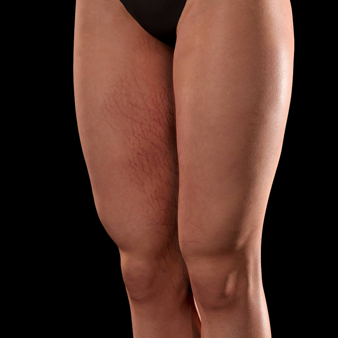 Angled Clinique Chloé female patient with stretch marks on her thighs