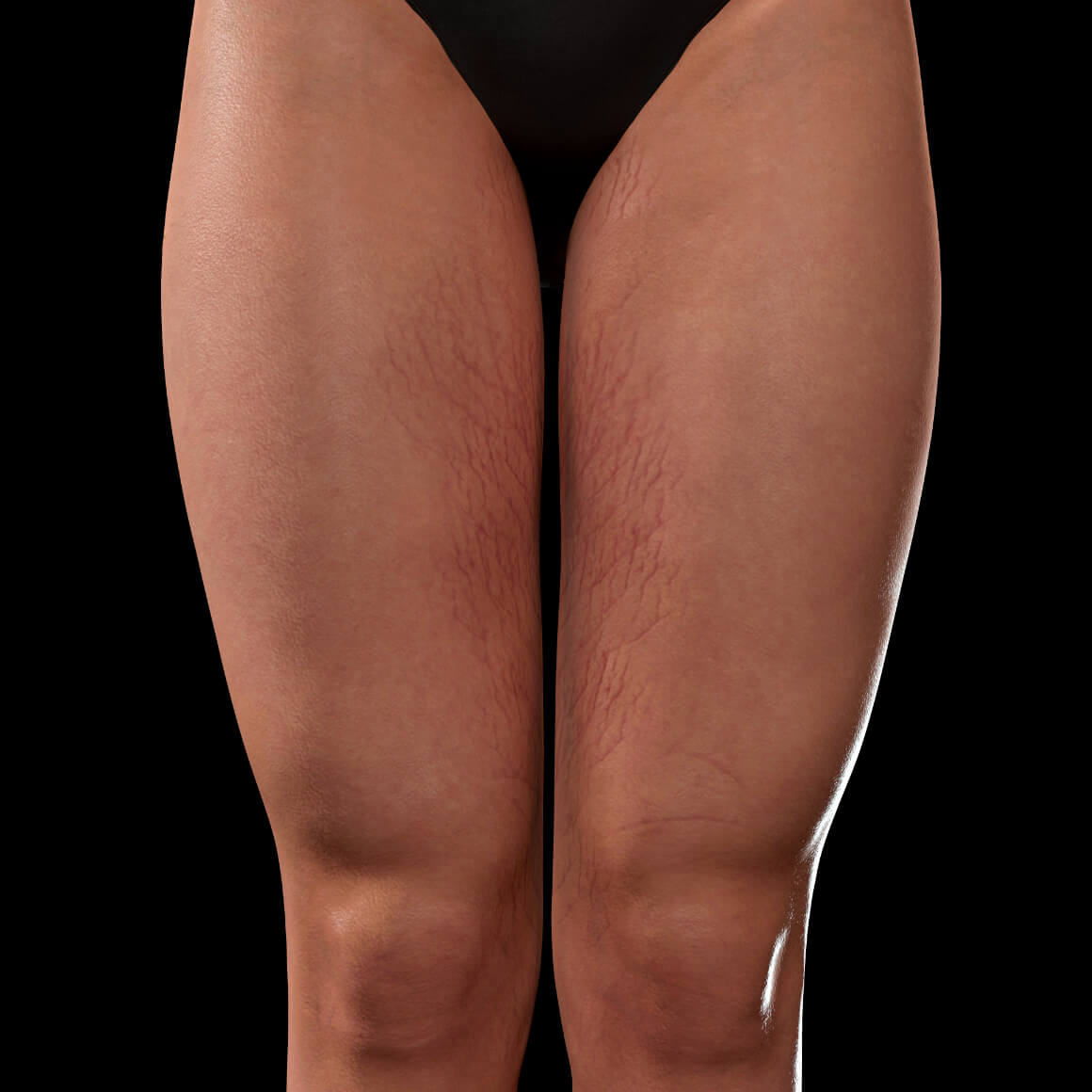 Anterior thighs of a Clinique Chloé female patient showing stretch marks