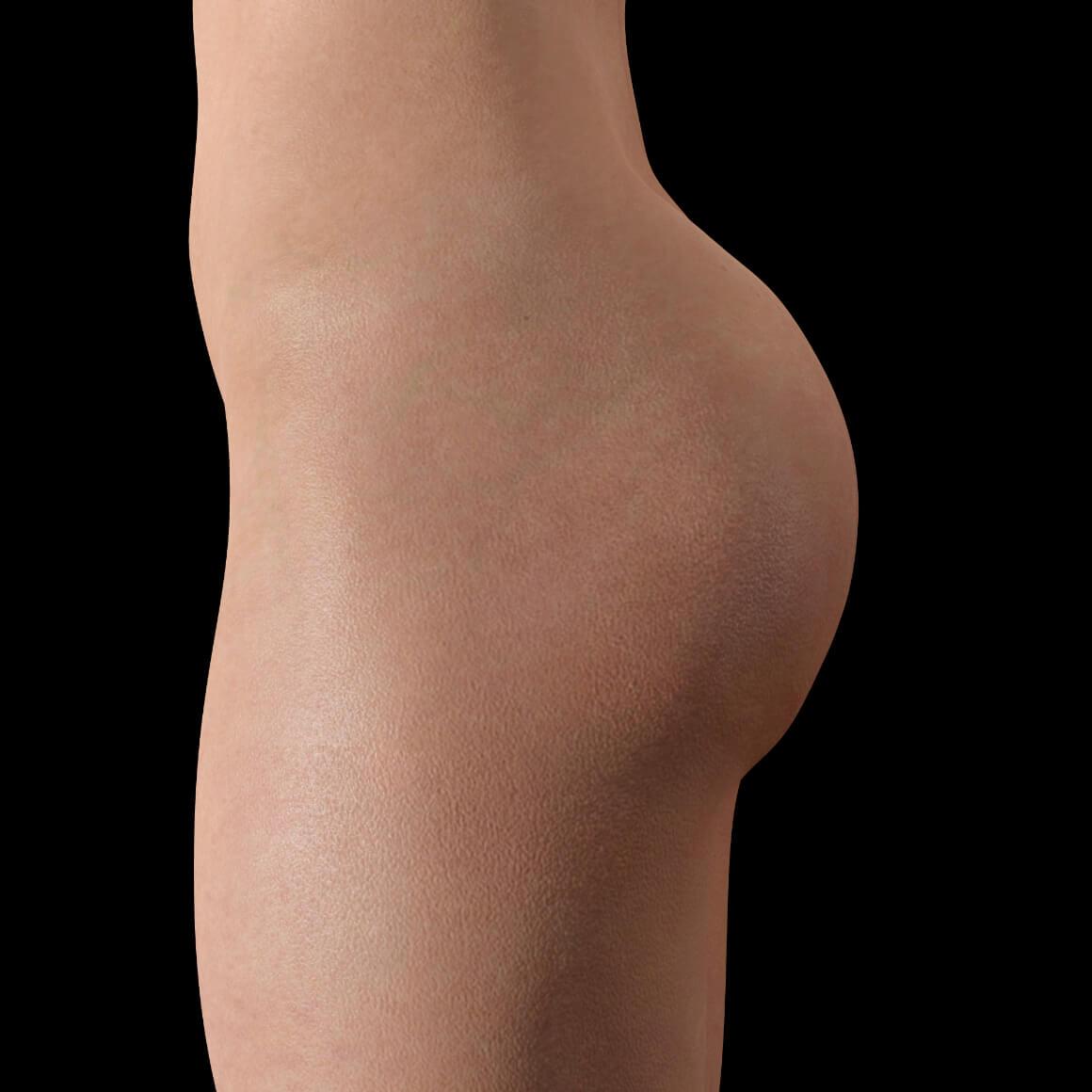 Patiente à Clinique Chloé positionnée de côté après un traitement d'augmentation des fesses avec des injections de Sculptra