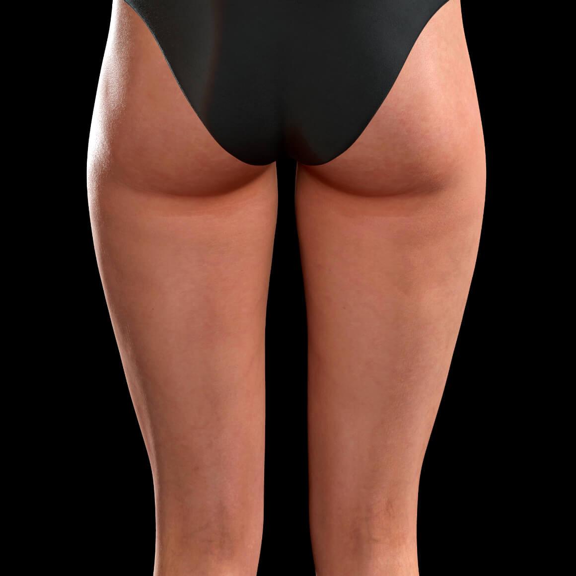 Cuisses postérieures d'une patiente de la Clinique Chloé après un traitement Profound contre la cellulite