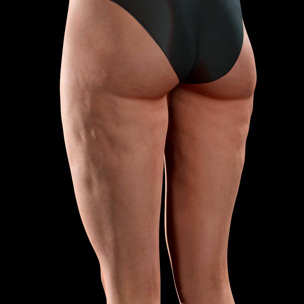 Une patiente de la Clinique Chloé positionnée en angle montrant des cuisses avec de la cellulite