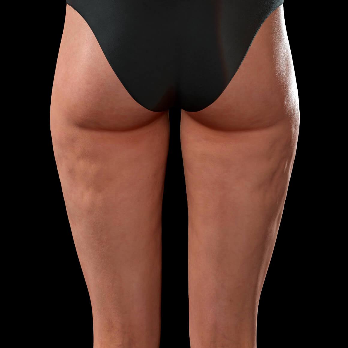 Cuisses postérieures d'une patiente de la Clinique Chloé démontrant de la cellulite