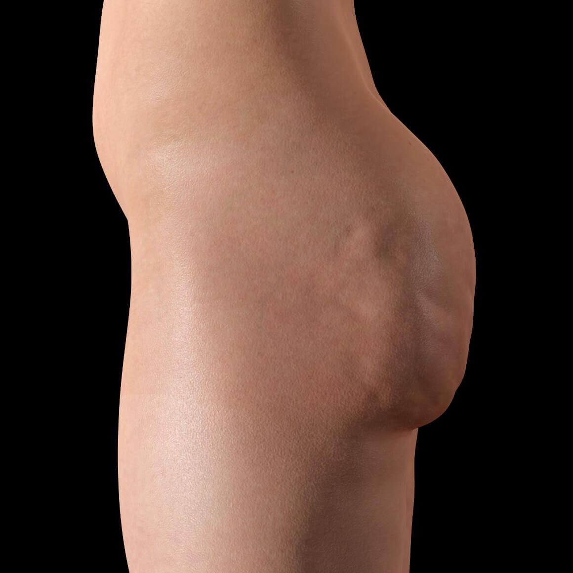 Une patiente de la Clinique Chloé positionnée de côté avec de la cellulite sur les fesses
