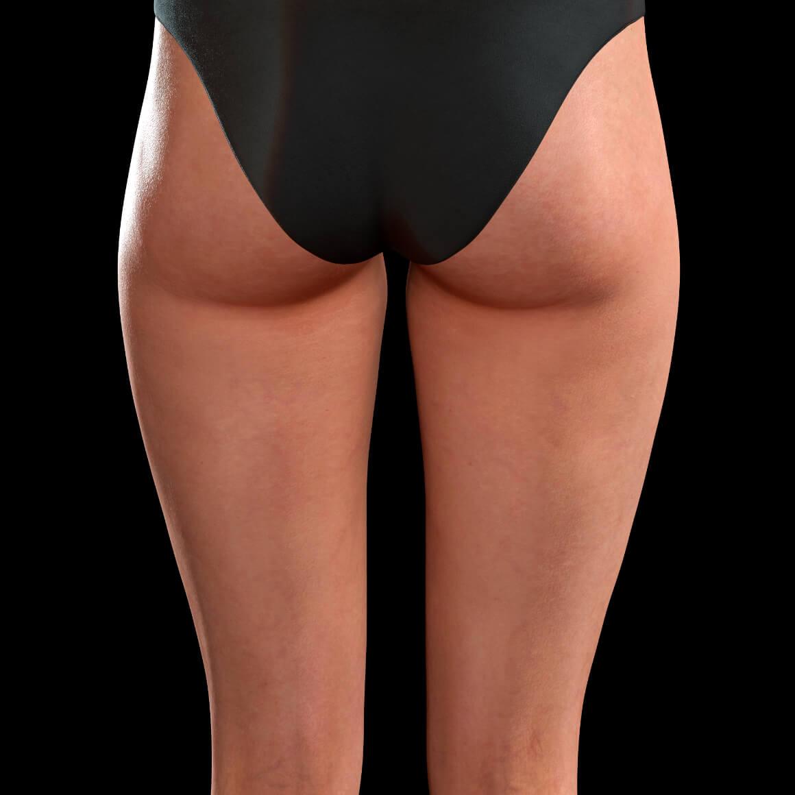 Cuisses postérieures d'une patiente de la Clinique Chloé après des traitements anti-cellulite au laser TightSculpting