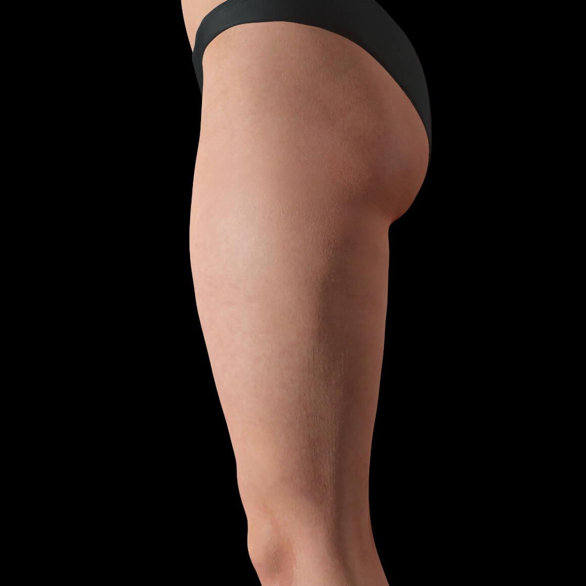 Vue de côté des cuisses d'une patiente de la Clinique Chloé après des traitements anti-cellulite au laser TightSculpting