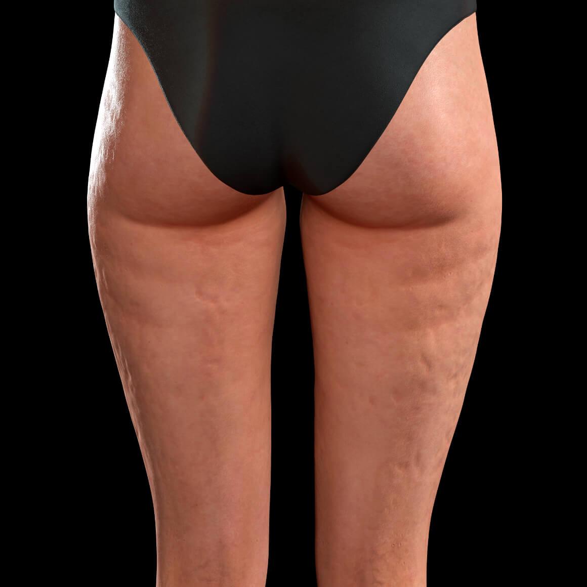 Cuisses postérieures d'une patiente de la Clinique Chloé montrant de la cellulite