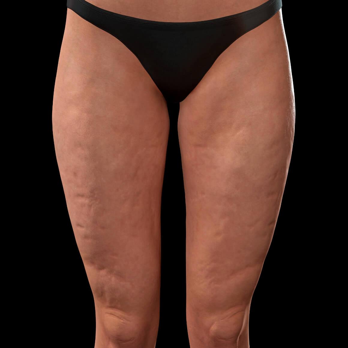 Cuisses antérieures d'une patiente de la Clinique Chloé montrant de la cellulite