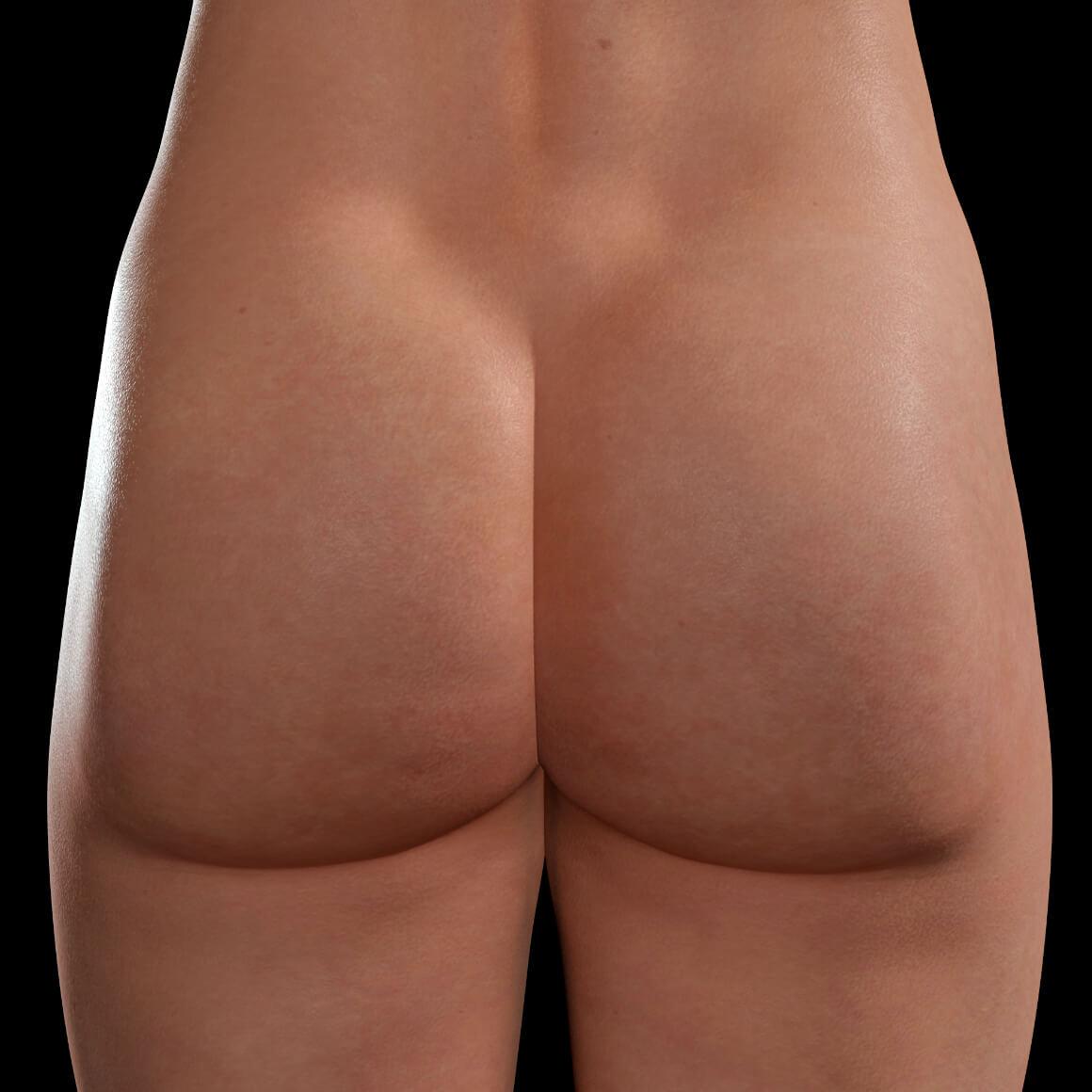 Fesses d'une patiente de la Clinique Chloé après des traitements Venus Legacy contre la cellulite