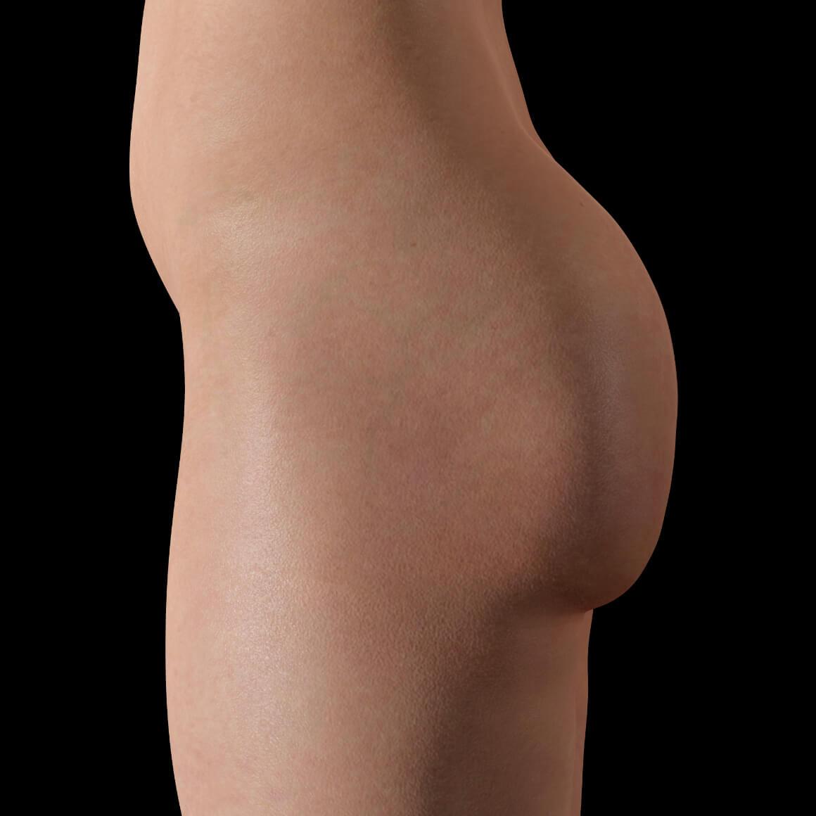 Fesses d'une patiente de la Clinique Chloé vue de côté après des traitements Venus Legacy contre la cellulite