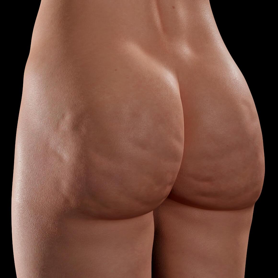 Fesses d'une patiente de la Clinique Chloé vue en angle montrant de la cellulite