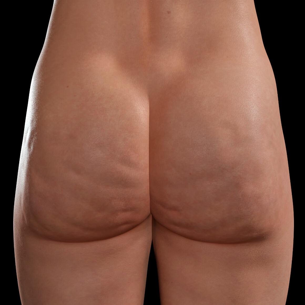 Fesses d'une patiente de la Clinique Chloé montrant de la cellulite