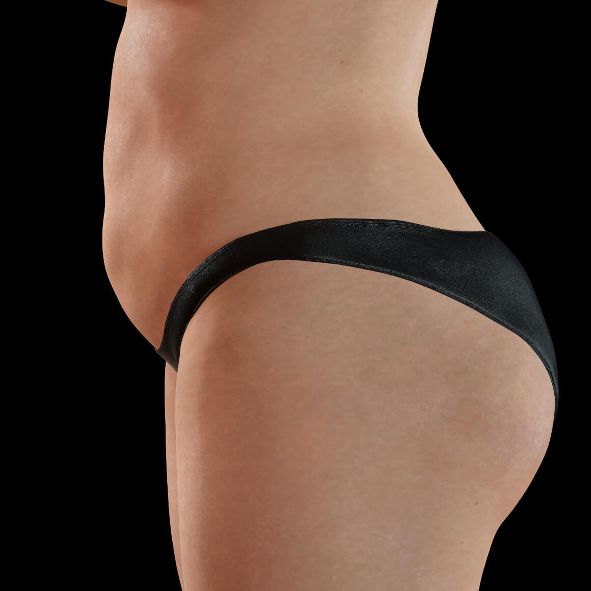 Une patiente de la Clinique Chloé positionnée de côté ayant des excès de gras localisés sur le corps