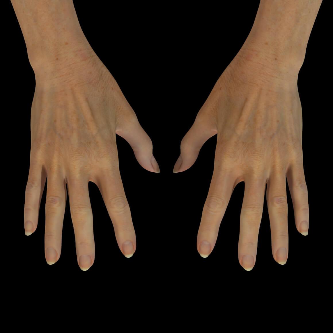 Mains d'une patiente de la Clinique Chloé après des injections d'agents de comblement pour leur rajeunissement