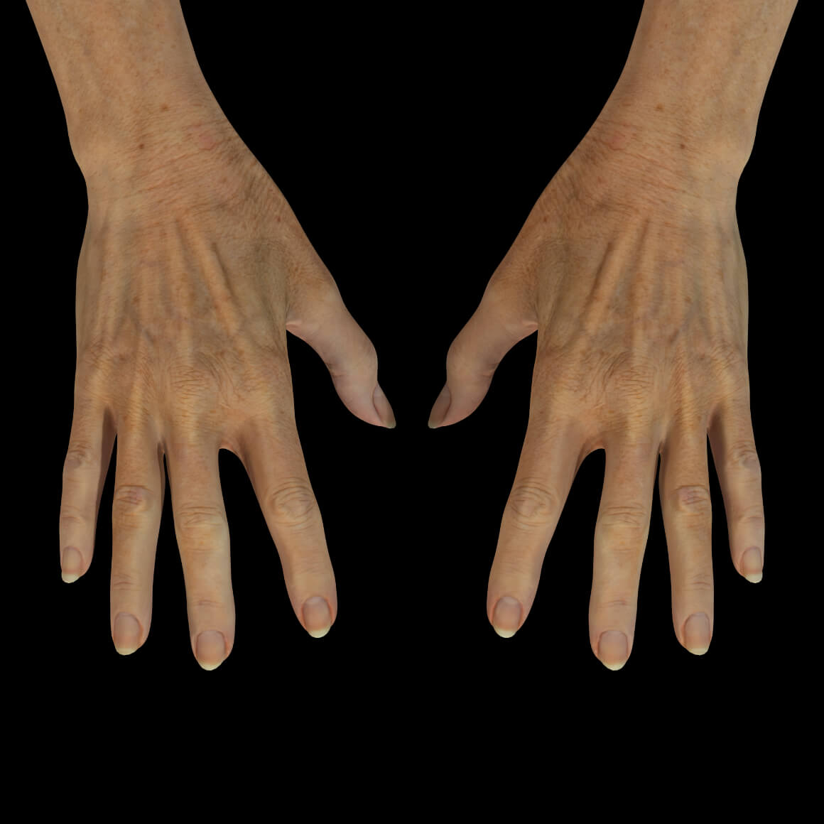 Mains d'une patiente de la Clinique Chloé montrant des rides et des tendons apparents