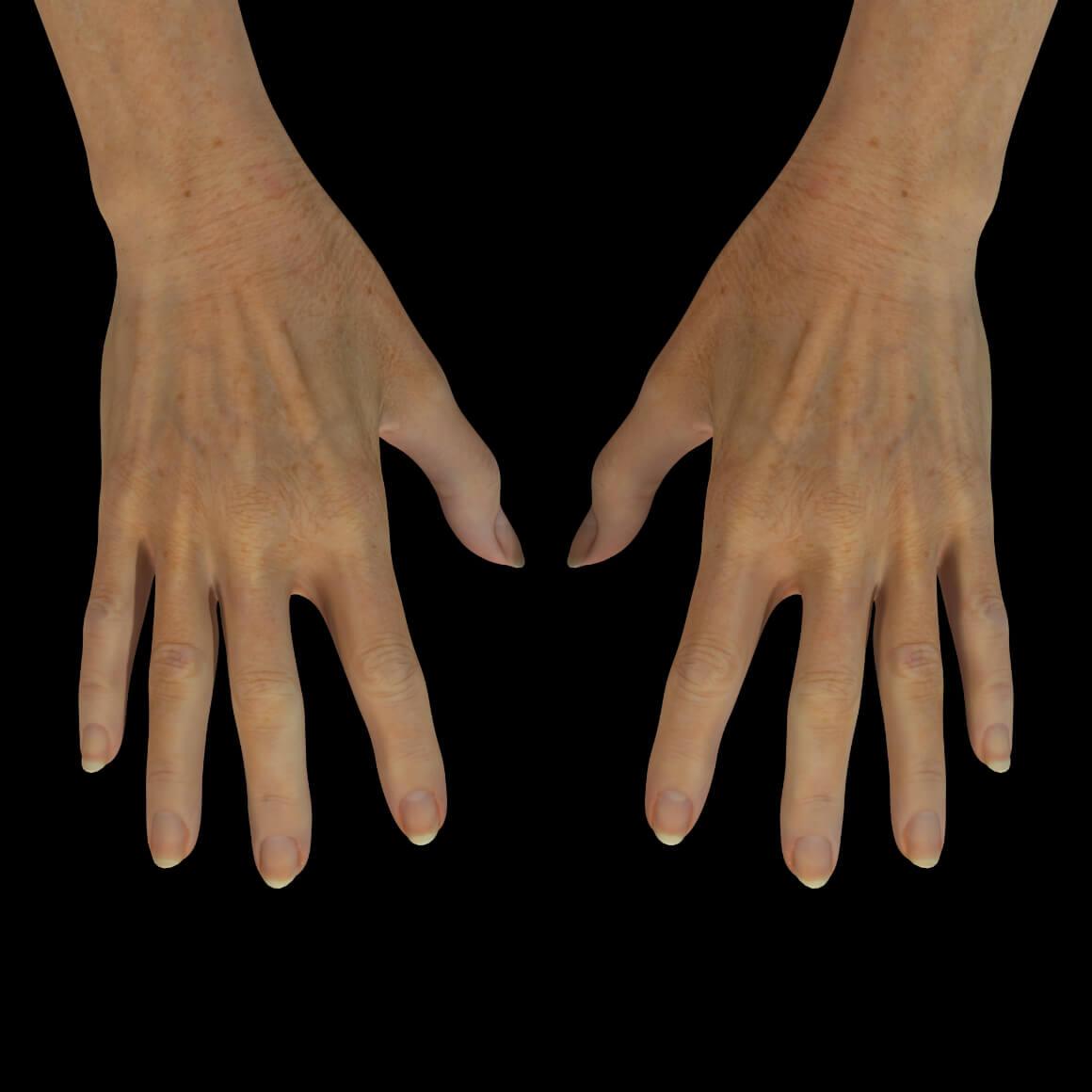 Mains d'une patiente de la Clinique Chloé après un traitement de photorajeunissement IPL pour effacer les taches pigmentaires