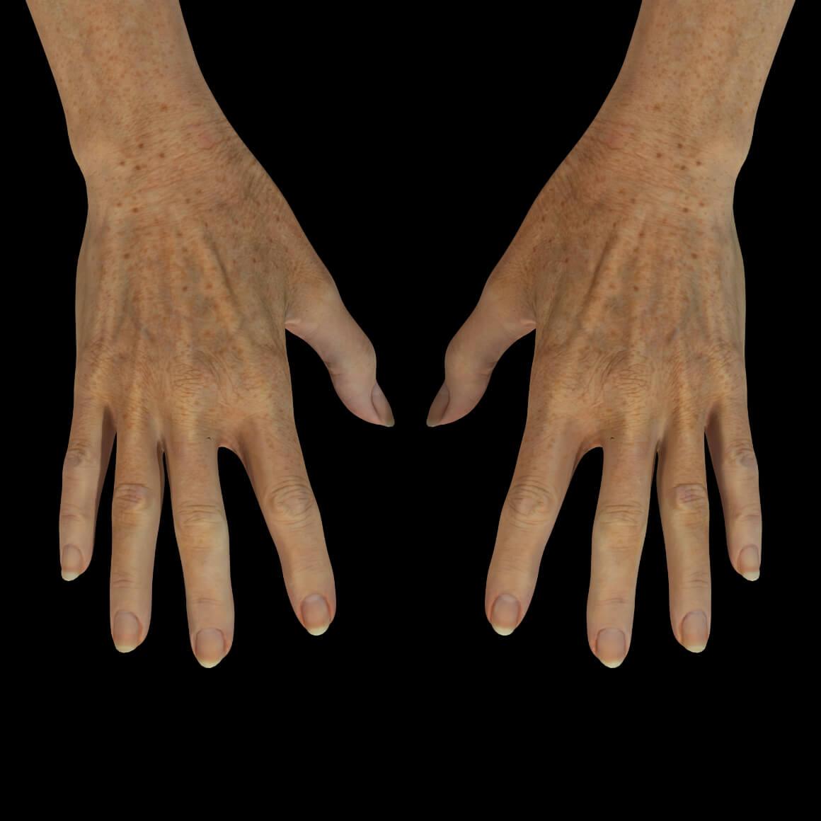 Mains d'une patiente de la Clinique Chloé montrant plusieurs taches pigmentaires