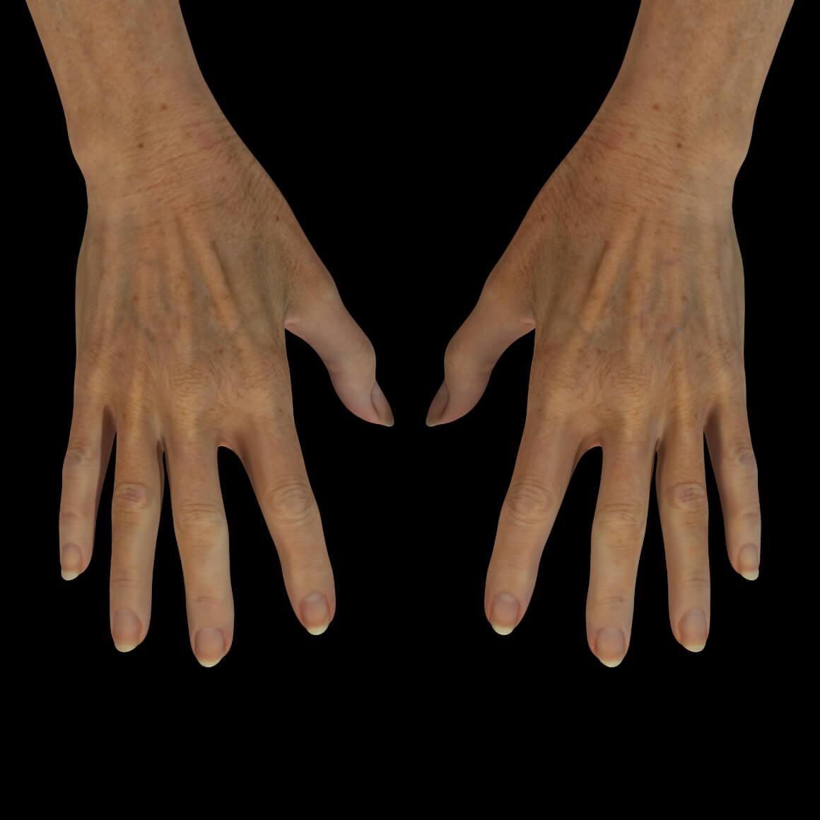 Mains d'une patiente de la Clinique Chloé après des traitements de plasma riche en plaquettes pour rajeunir leur apparence