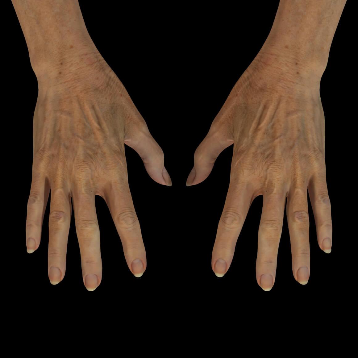 Mains d'une patiente de la Clinique Chloé montrant plusieurs taches pigmentaires, des rides et des tendons apparents