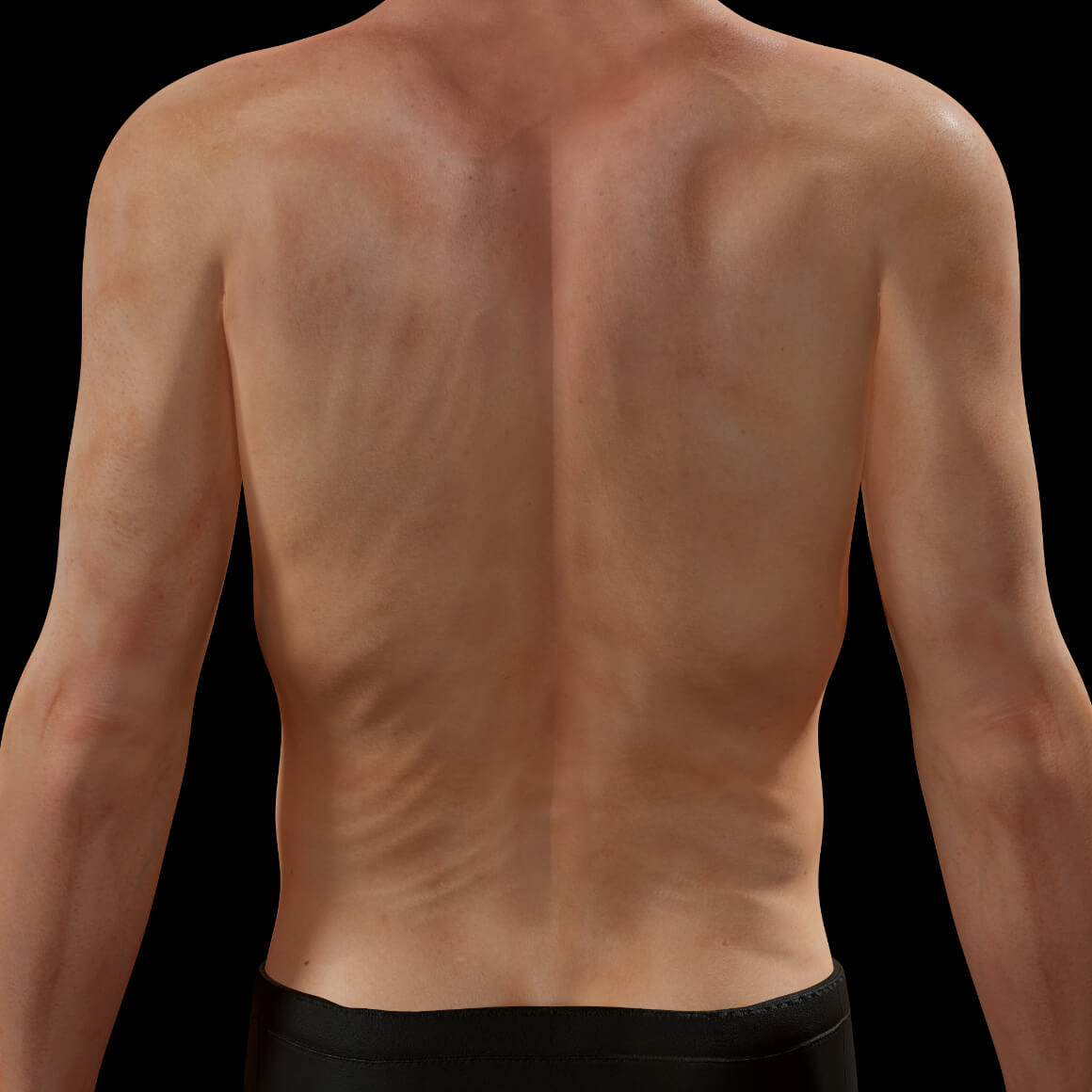 Dos d'un patient de la Clinique Chloé après des traitements de radiofréquence Venus Legacy pour le raffermissement corporel