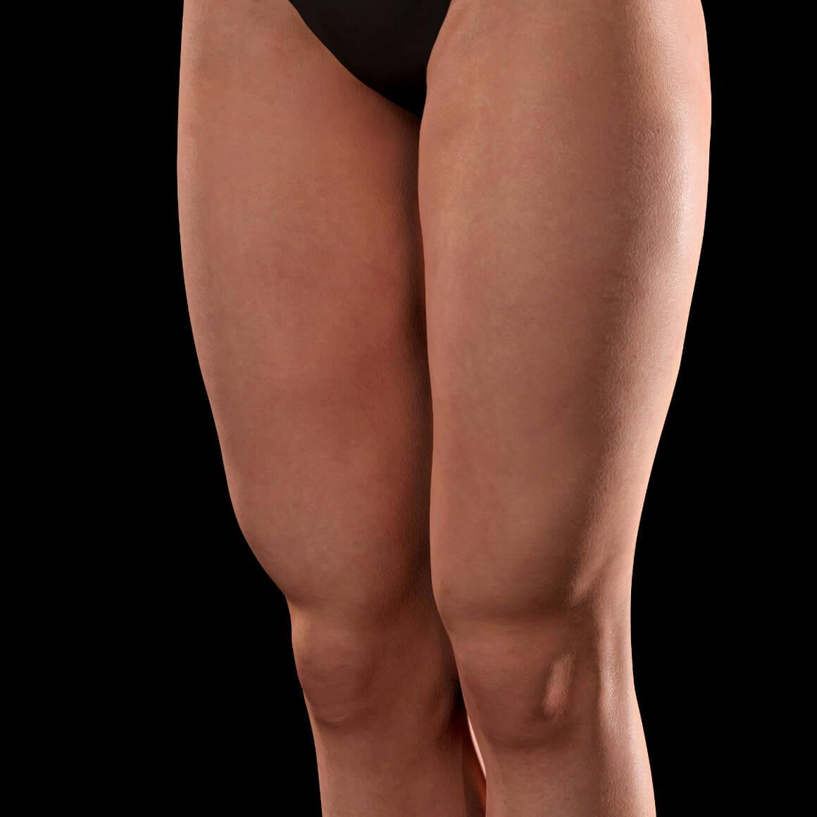 Cuisses d'une patiente de la Clinique Chloé positionnée en angle après des traitements de Venus Viva contre les vergetures
