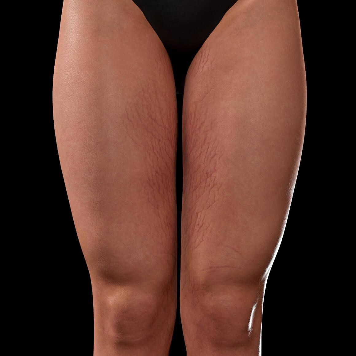 Cuisses antérieures d'une patiente de la Clinique Chloé montrant des vergetures